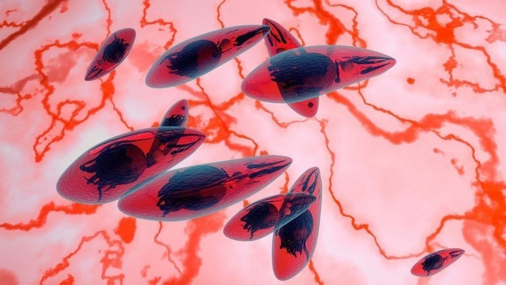 Токсоплазма — паразит, манипулирующий человеческой культурой